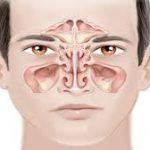 علاقة التهاب الجيوب الأنفية والسعال