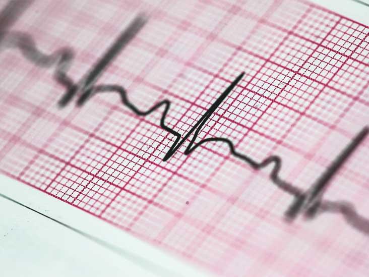يضخم يوسع يبالغ وظيفة عداء دقات القلب السريعة Sjvbca Org