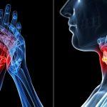 التهاب المفاصل الروماتويدي وعلاقته بوظيفة الغدة الدرقية