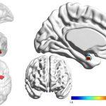 الرنين المغناطيسي يميز بين اضطراب ثنائي القطب والاكتئاب