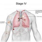 معلومات عن المرحلة الرابعة من سرطان الثدي وأهم أعراضها