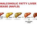 كيفية الكشف المبكر عن مرض الكبد الدهني قبل تلف الكبد