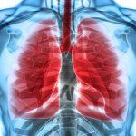 ملف شامل عن تليف الرئة وطرق علاجها