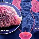 للوقاية من سرطان المثانة