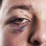 اسرع الوسائل لعلاج كدمات الوجه