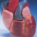 كيفية علاج تراكم الكالسيوم على القلب