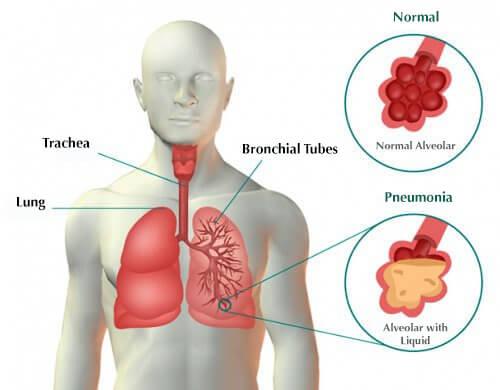 أسباب التهاب الرئة المرسال