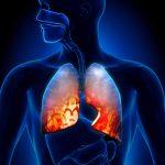 بحث حول الجهاز التنفسي وكيفية المحافظة عليه