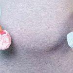 الكشف عن الحمل عن طريق السره
