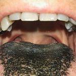 اللسان الأسود المشعر و عوامل الاصابة به