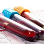 الفرق بين تحليل فيتامين د ود3