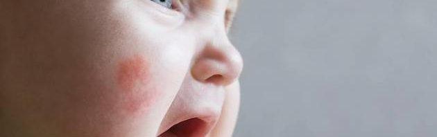 حساسية الجلد عند الأطفال %D8%A3%D8%B3%D8%A8%D8%A7%D8%A8_%D8%B8%D9%87%D9%88%D8%B1_%D8%AD%D8%B3%D8%A7%D8%B3%D9%8A%D8%A9_%D8%A7%D9%84%D8%AC%D9%84%D8%AF_%D8%B9%D9%86%D8%AF_%D8%A7%D9%84%D8%A3%D8%B7%D9%81%D8%A7%D9%84-630x198