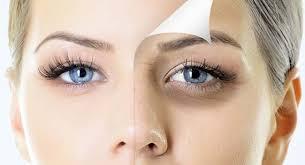 الامراض التي تسبب سواد تحت العين المرسال