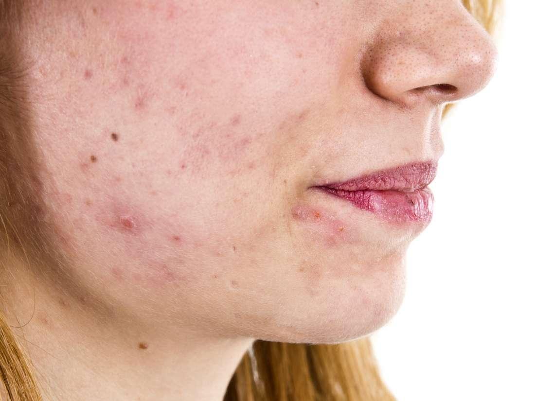 هوس ارسم صورة حلاقة شعر اعراض زيادة الهرمون الانثوي عند الرجال Virelaine Org