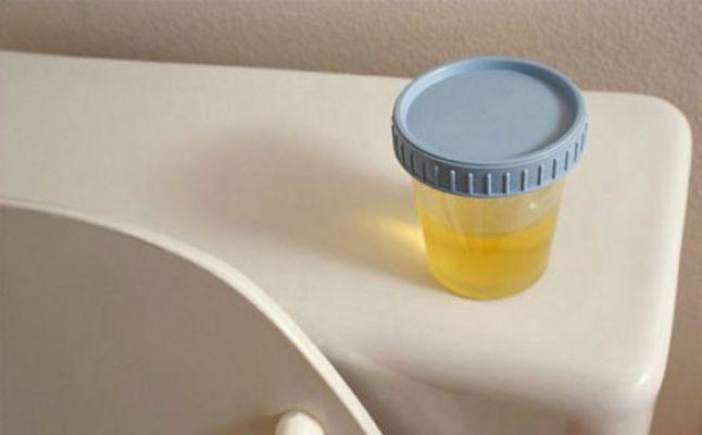 هل يتغير لون البول للحامل المرسال