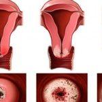 اعراض قرحة الرحم