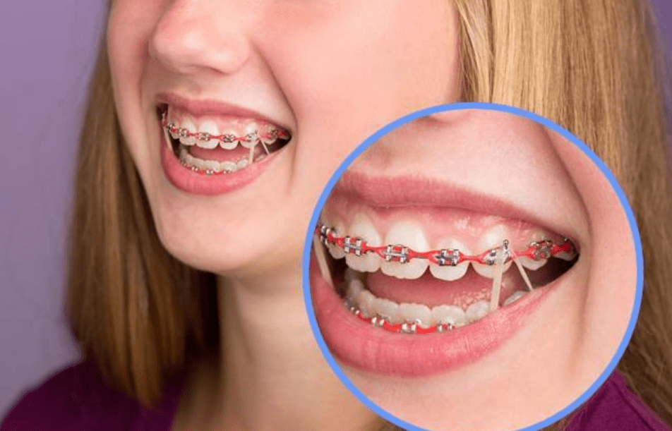 ألوان تقويم الأسنان للبشرة السمراء المرسال