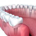 احدث الطرق في زراعة الاسنان