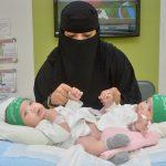 بحث عن فصل التوائم الملتصقة في السعودية