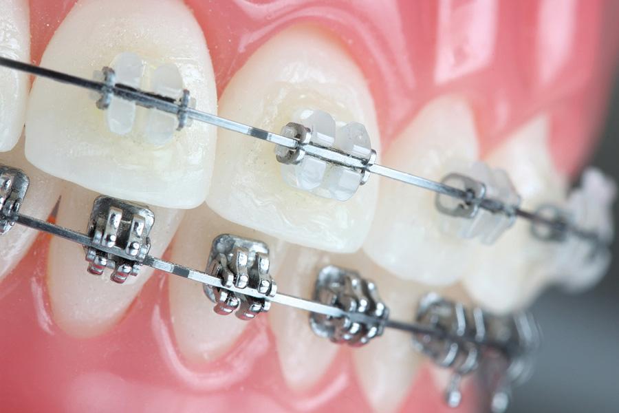 الوان تقويم الاسنان المرسال