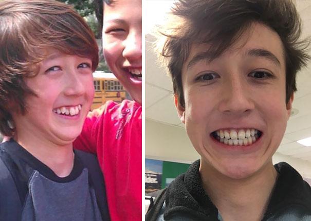 تقويم الاسنان قبل وبعد المرسال