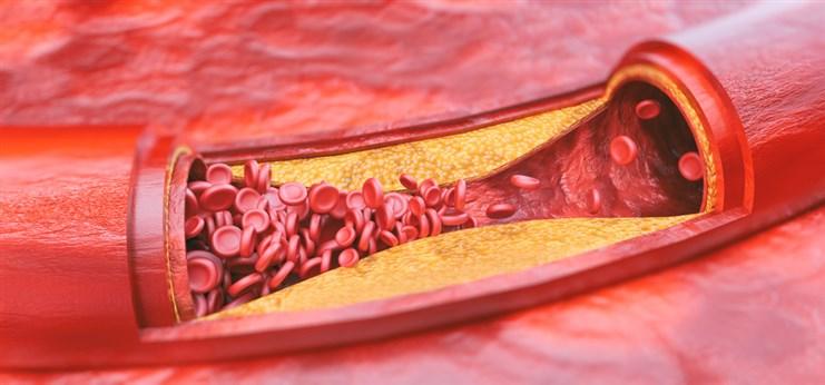 الفرق بين تصلب الشرايين وارتفاع ضغط الدم تصلب-الشرايين-1.jpg