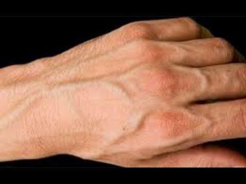 لماذا عروق اليد ظاهره المرسال