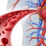 تخصص جراحة الاوعية الدموية
