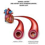اعراض ضيق الاوعية الدموية