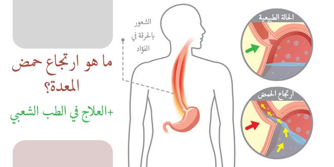 الفرق بين التهاب المريء وارتجاع المرئ المرسال