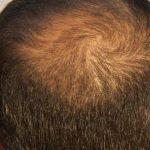 علاج بصيلات الشعر الميتة