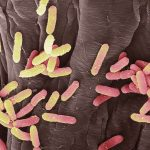 اسماء بكتيريا البول الشائعة التي تصيب الاغلبية