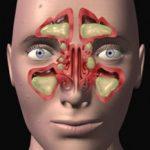الفرق بين حساسية الانف والتهاب الجيوب الانفية
