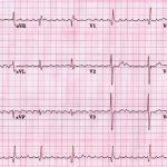 أعراض زيادة كهرباء القلب