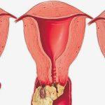 علاج فطريات المهبل لغير المتزوجات
