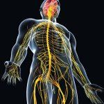ما هو مرض الشرى العصبي