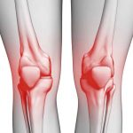 علاج خشونة الركبة بالحجامة