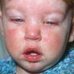 معلومات هامة عن تطعيم MMR