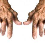 التهاب المفاصل سلبي المصل
