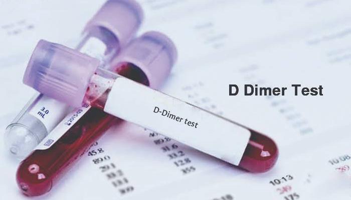 Image result for تحليل d-dimer