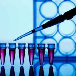 Photo of دواعي إجراء وشروط تحليل PCR