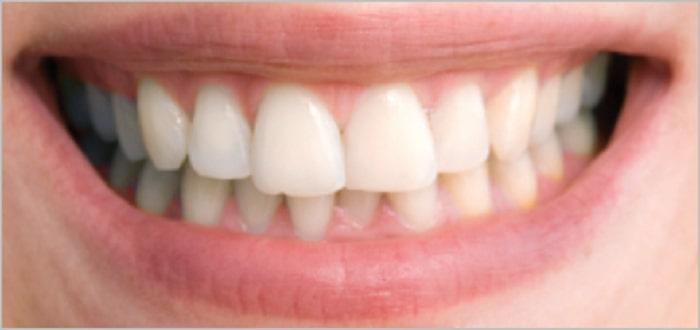 اسماء مبيضات الاسنان من الصيدلية المرسال