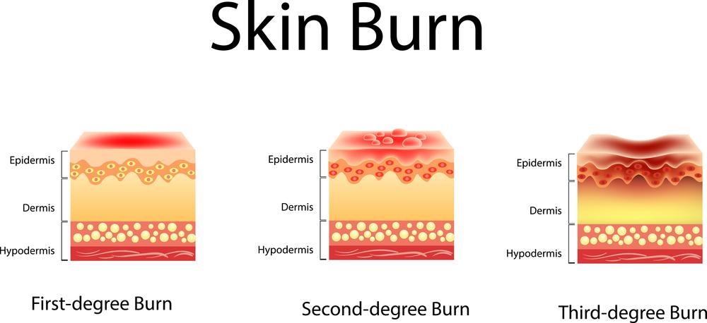 هل يعود لون الجلد بعد الحرق المرسال